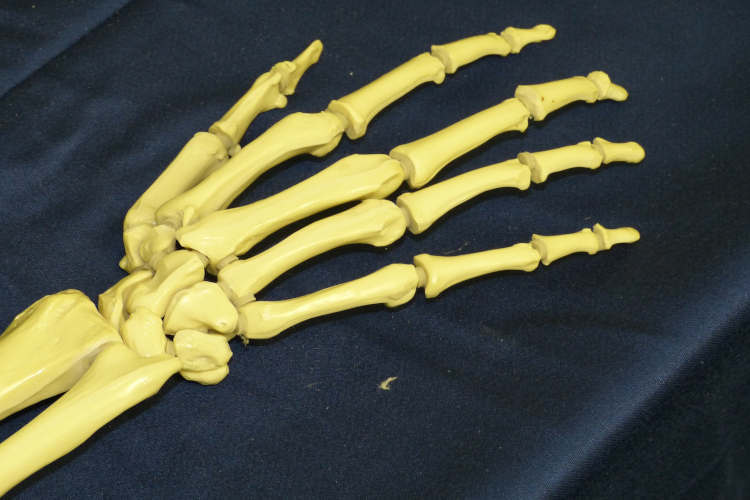 L&I workers comp claim carpal tunnel syndrome